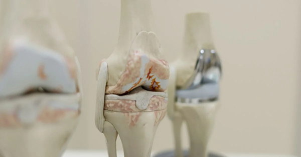 Glucosamine's effects on bone and joint healthGlucosamine's effects on bone and joint health