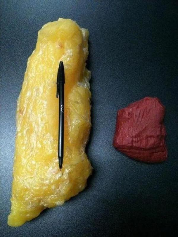 Scientists explain that excess body fat, especially belly fat, disrupts the normal balance and function of hormones